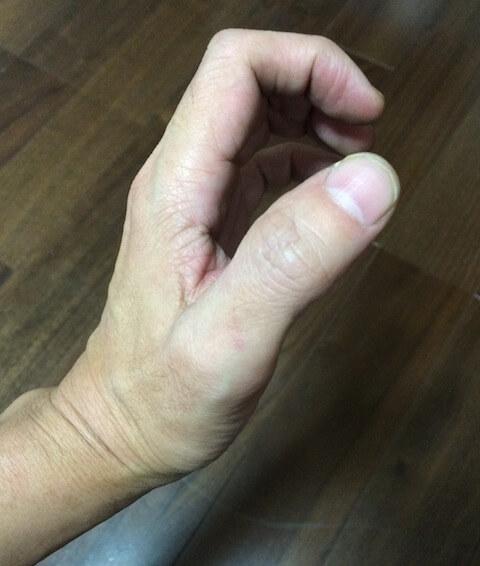 指を曲げる